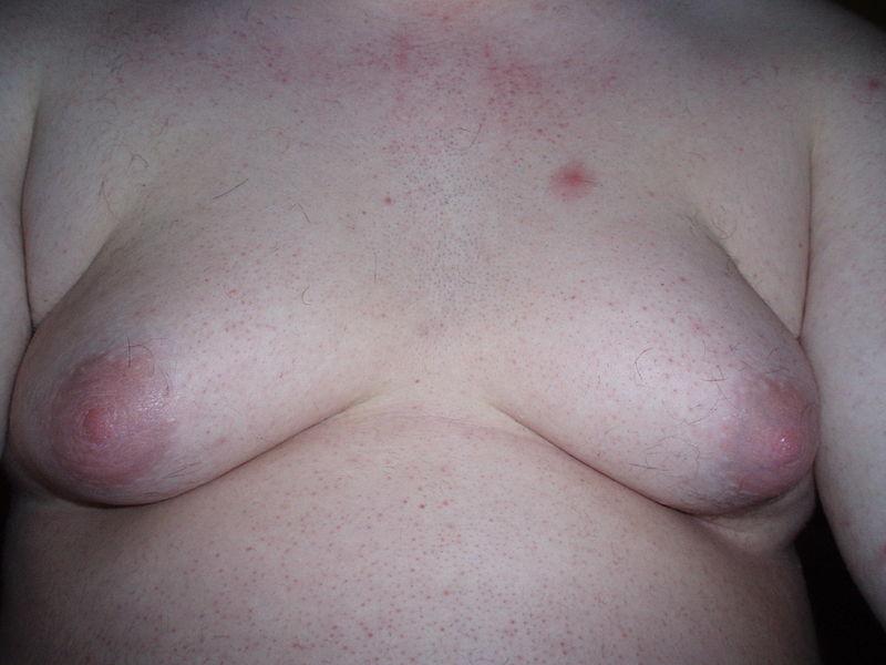 from Evan dutasteride spironolactone transgender
