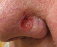 basal-cell-carcinoma